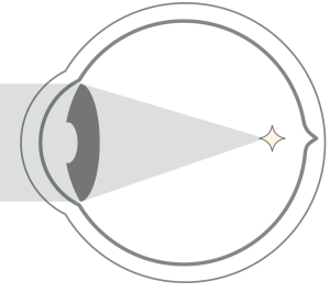 myopia-eye-myopia